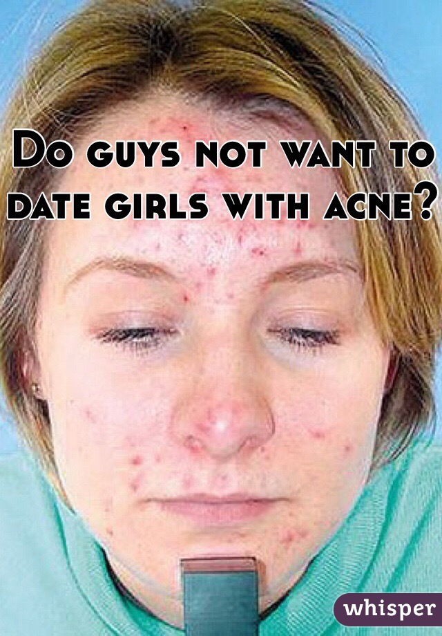 Do guys not want to date girls with acne?