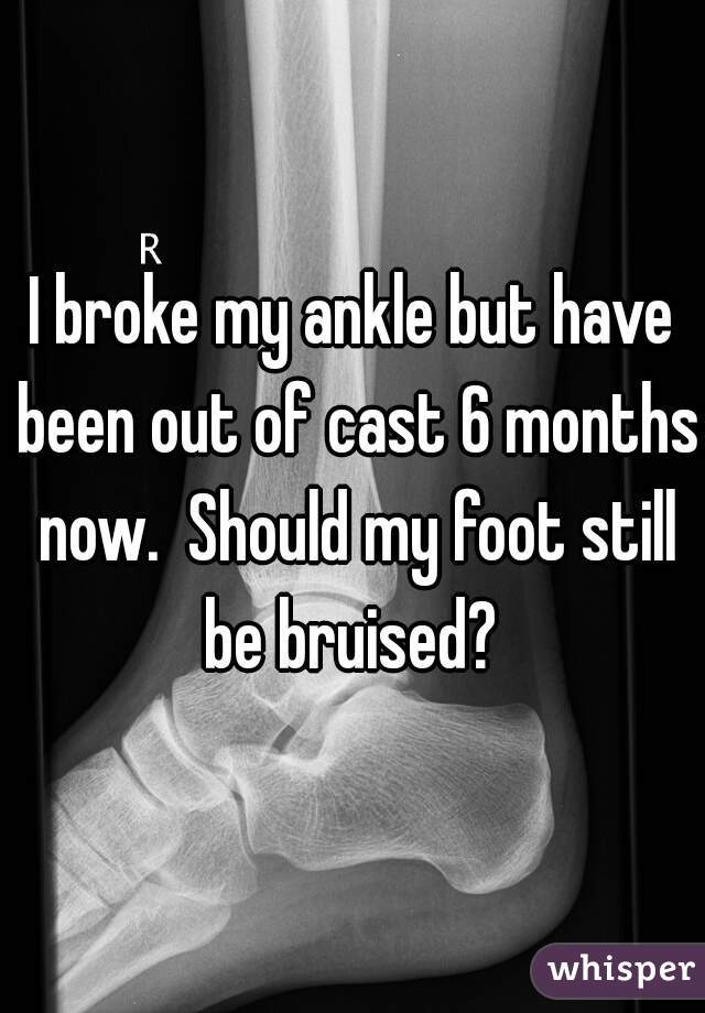 I broke my ankle but have been out of cast 6 months now.  Should my foot still be bruised?