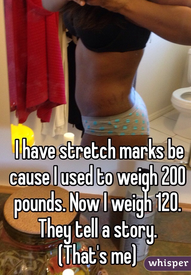I have stretch marks be cause I used to weigh 200 pounds. Now I weigh 120. They tell a story.  (That's me)