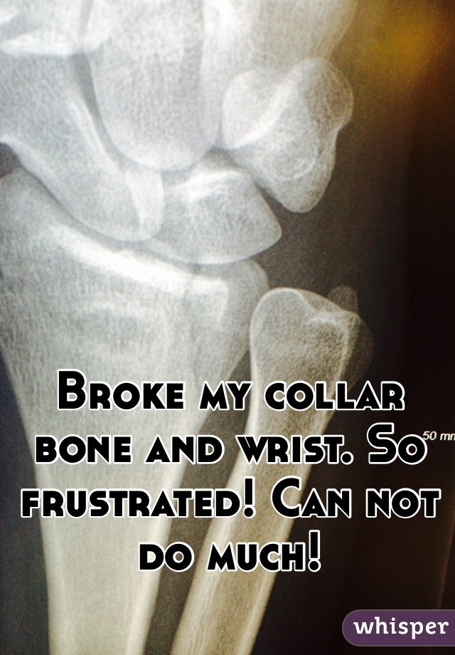 Broke my collar bone and wrist. So frustrated! Can not do much!