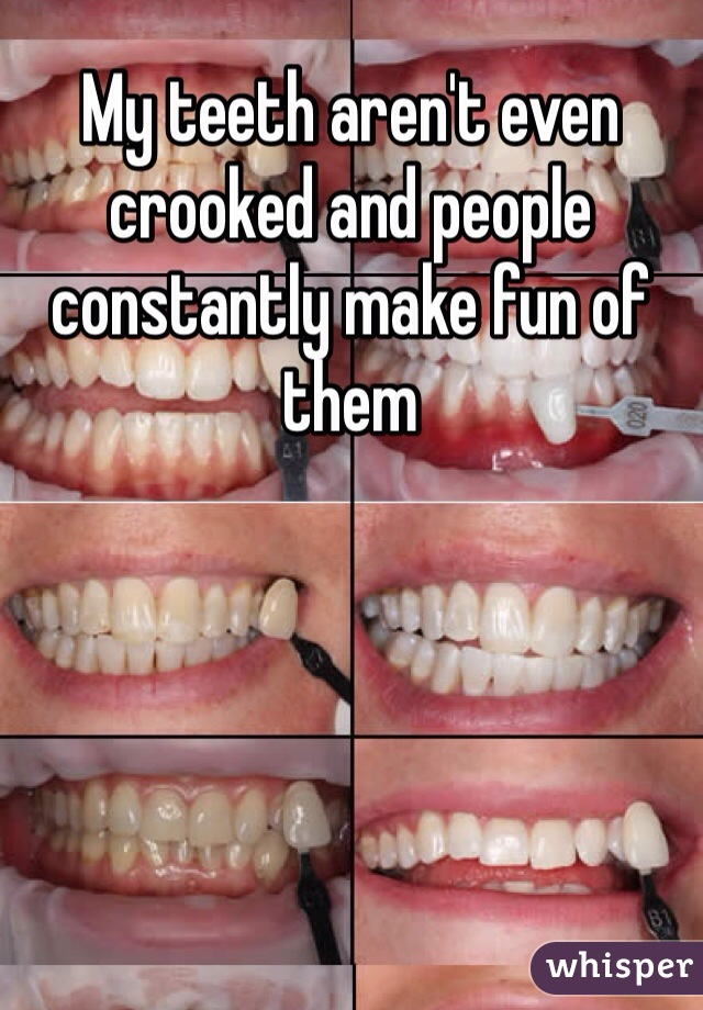My teeth aren't even crooked and people constantly make fun of them