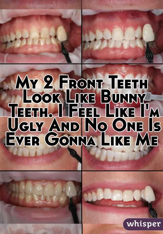 My 2 Front Teeth Look Like Bunny Teeth. I Feel Like I'm Ugly And No One Is Ever Gonna Like Me