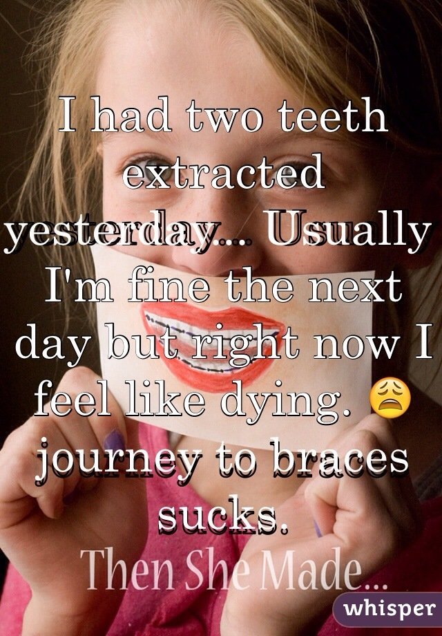 I had two teeth extracted yesterday... Usually I'm fine the next day but right now I feel like dying. 😩 journey to braces sucks.