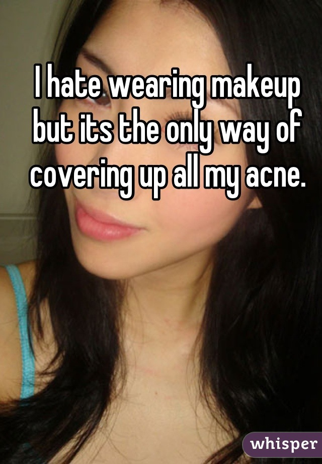 I hate wearing makeup but its the only way of covering up all my acne.