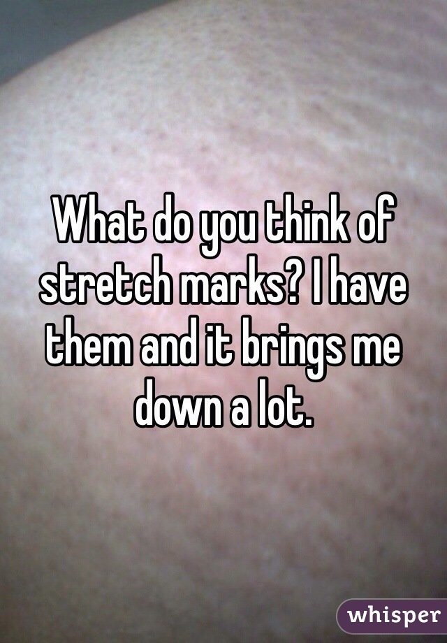 What do you think of stretch marks? I have them and it brings me down a lot.