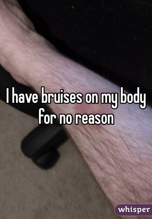 I have bruises on my body for no reason