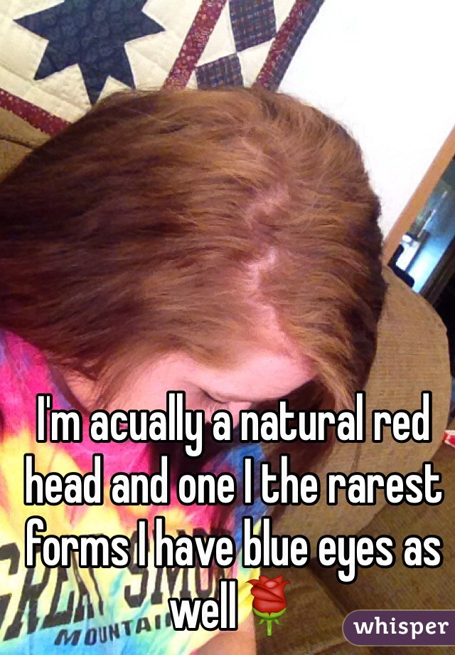 I'm acually a natural red head and one I the rarest forms I have blue eyes as well🌹