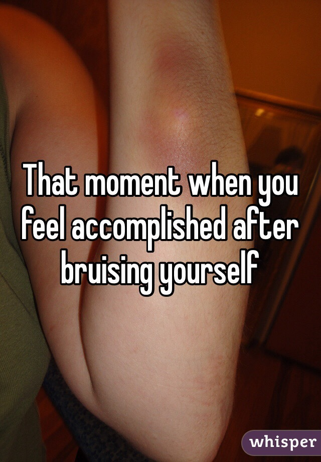 That moment when you feel accomplished after bruising yourself
