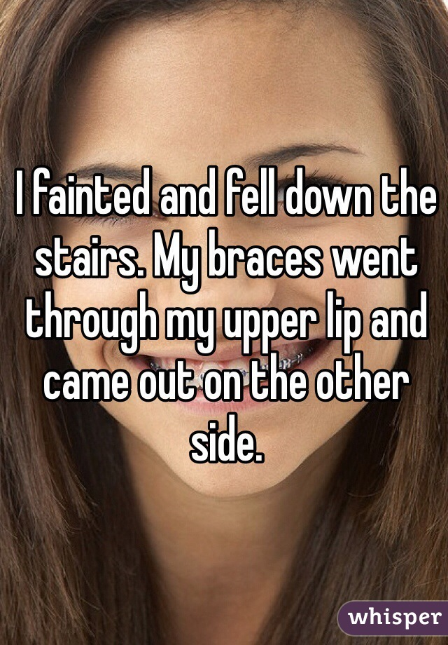 I fainted and fell down the stairs. My braces went through my upper lip and came out on the other side.