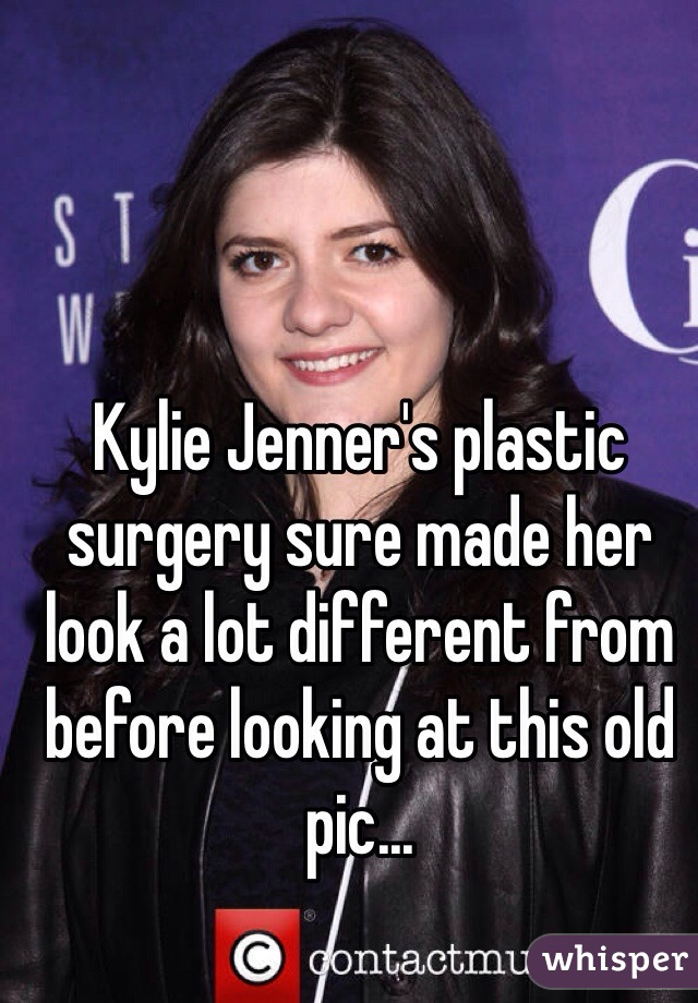 Kylie Jenner's plastic surgery sure made her look a lot different from before looking at this old pic...