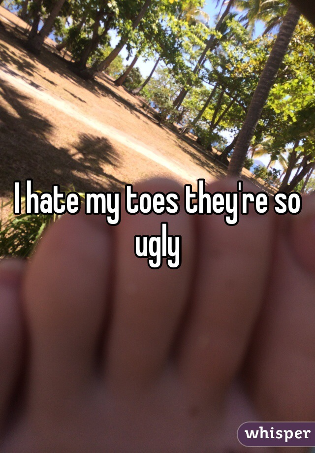 I hate my toes they're so ugly