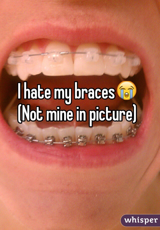 I hate my braces😭 (Not mine in picture)