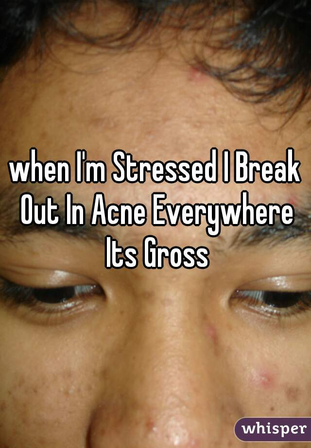 when I'm Stressed I Break Out In Acne Everywhere Its Gross
