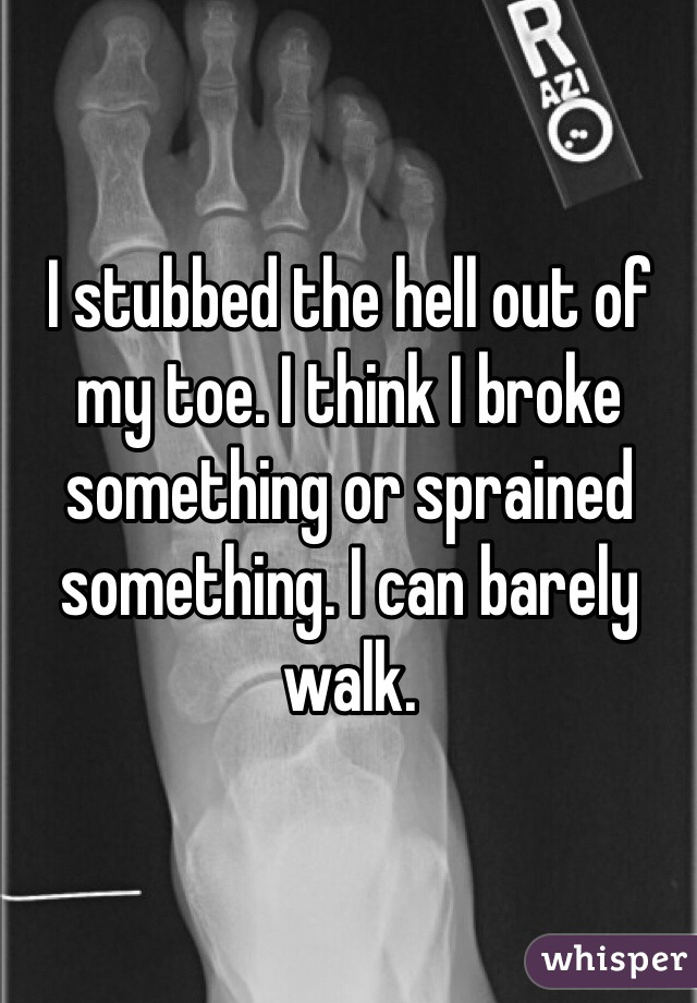 I stubbed the hell out of my toe. I think I broke something or sprained something. I can barely walk.