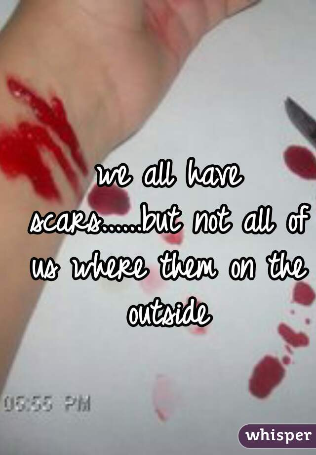 we all have scars......but not all of us where them on the outside