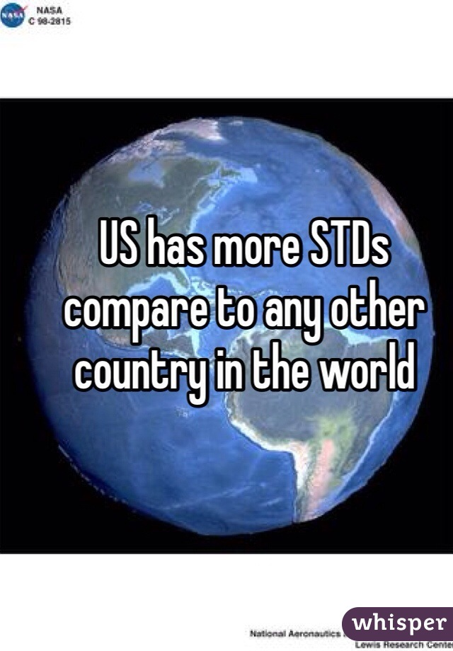 US has more STDs compare to any other country in the world