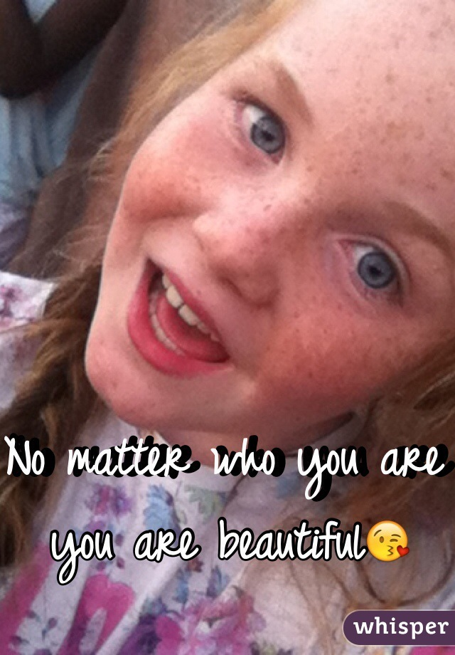 No matter who you are you are beautiful😘