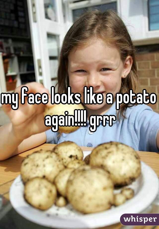 my face looks like a potato again!!!! grrr
