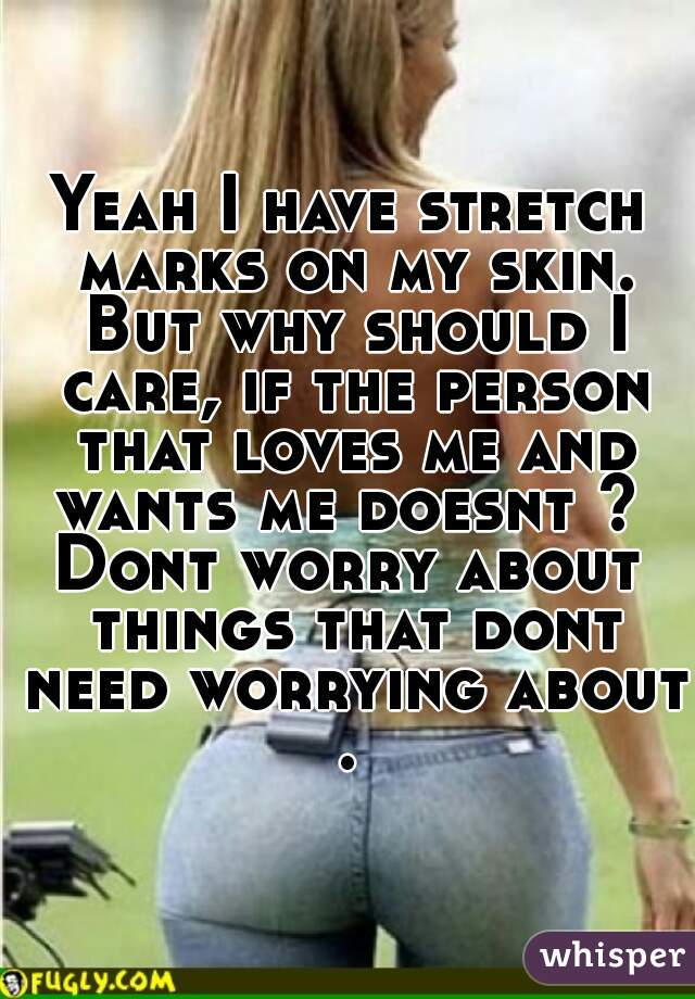 Yeah I have stretch marks on my skin. But why should I care, if the person that loves me and wants me doesnt ?  Dont worry about things that dont need worrying about .