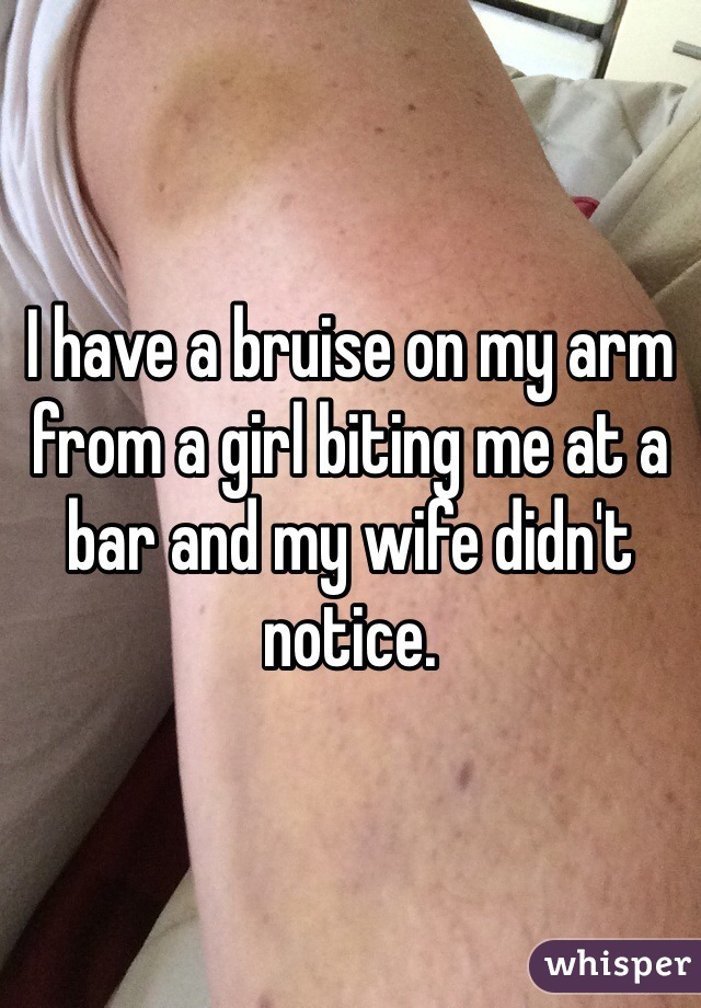 I have a bruise on my arm from a girl biting me at a bar and my wife didn't notice.