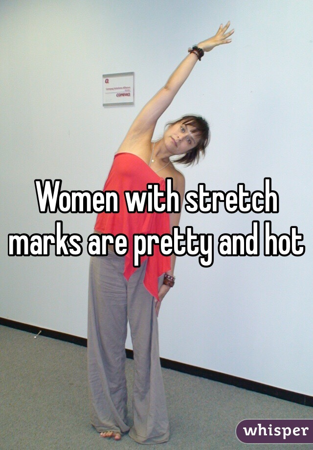 Women with stretch marks are pretty and hot