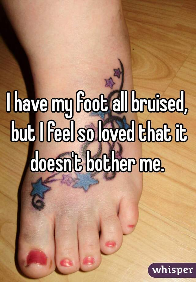 I have my foot all bruised, but I feel so loved that it doesn't bother me.