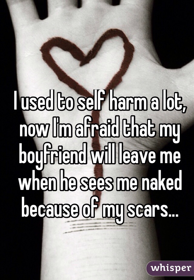 I used to self harm a lot, now I'm afraid that my boyfriend will leave me when he sees me naked because of my scars...