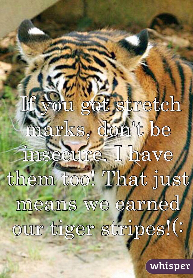 If you got stretch marks, don't be insecure. I have them too! That just means we earned our tiger stripes!(: