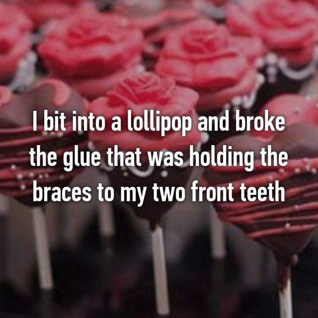 I bit into a lollipop and broke the glue that was holding the braces to my two front teeth