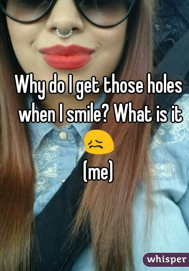 Why do I get those holes when I smile? What is it 😖  (me)