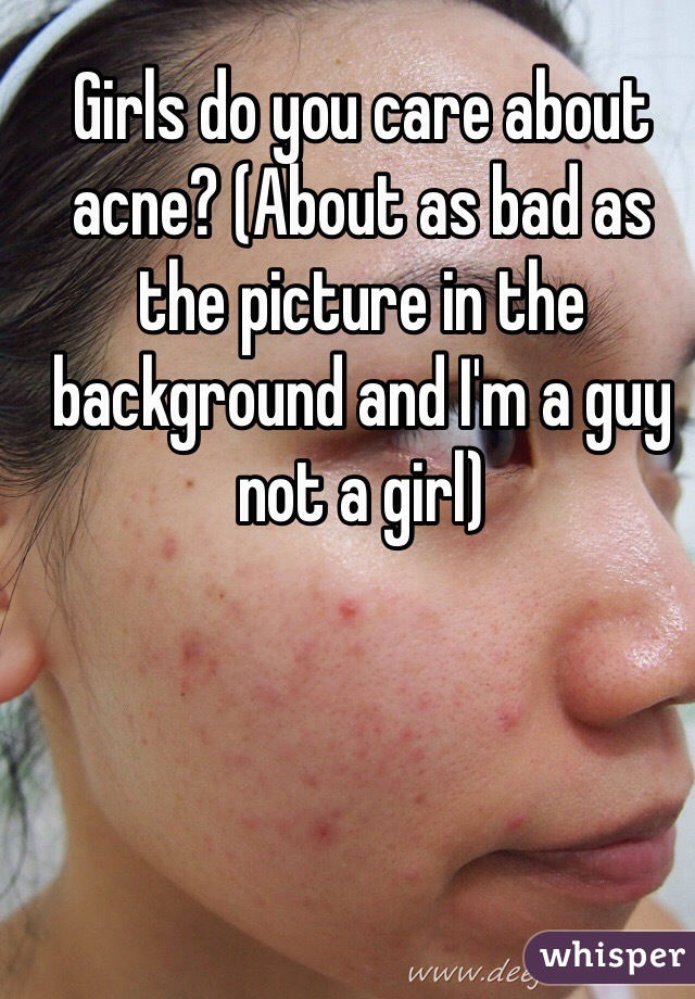 Girls do you care about acne? (About as bad as the picture in the background and I'm a guy not a girl)