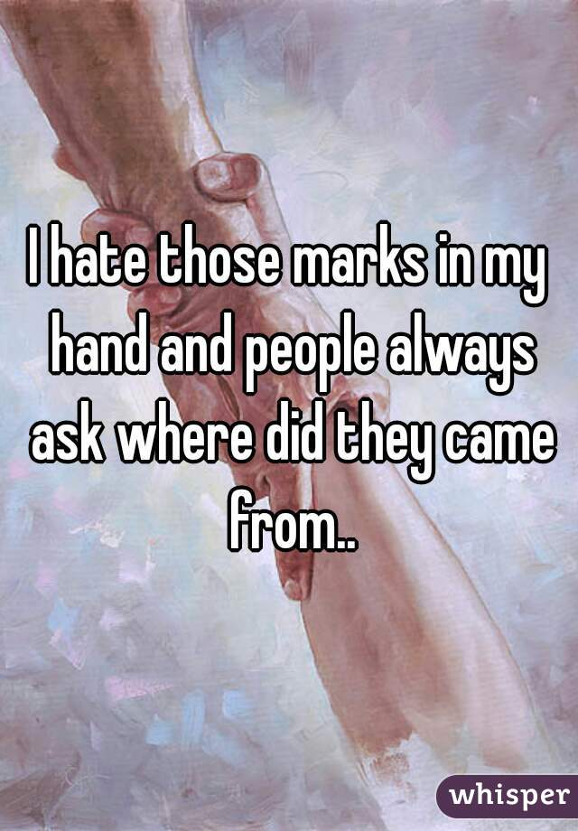 I hate those marks in my hand and people always ask where did they came from..