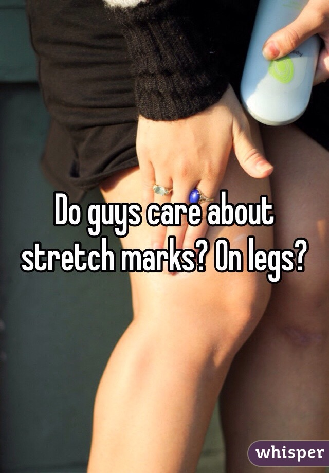 Do guys care about stretch marks? On legs?