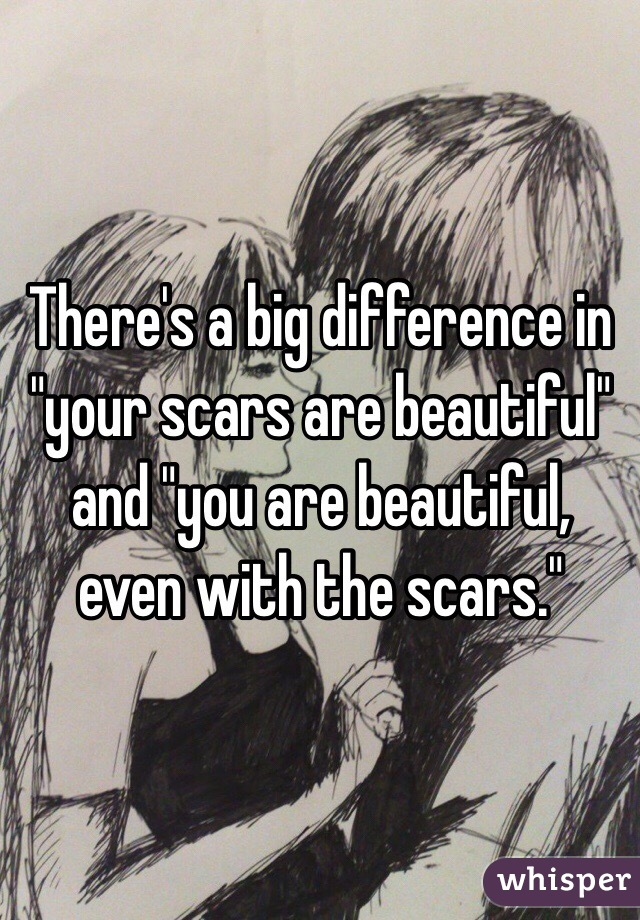 "There's a big difference in ""your scars are beautiful"" and ""you are beautiful, even with the scars."""