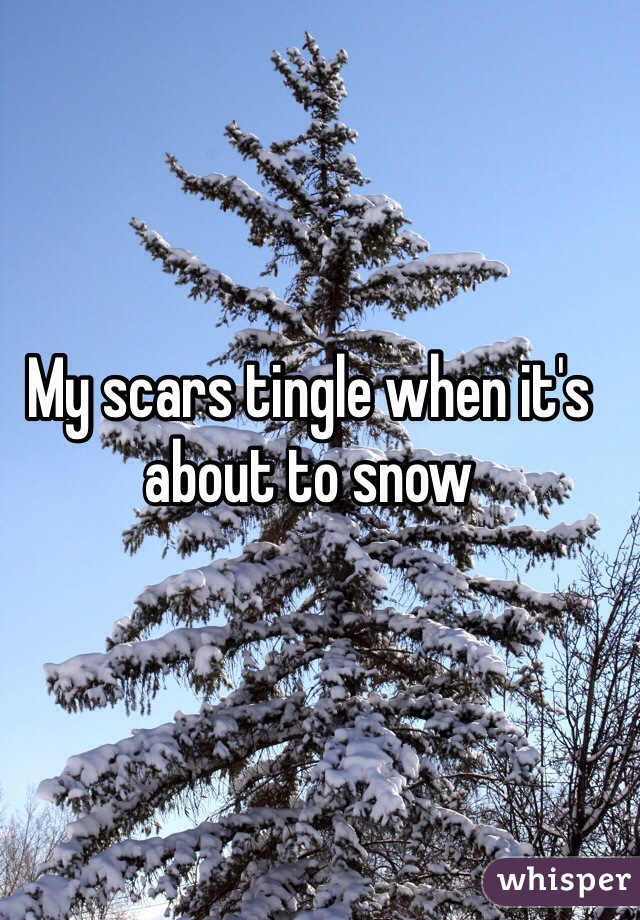 My scars tingle when it's about to snow