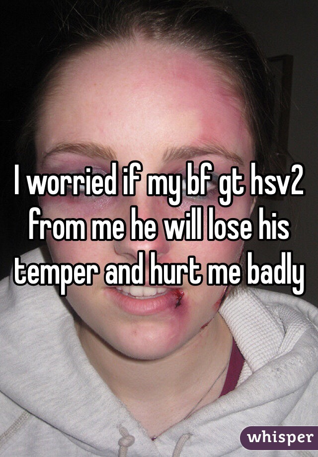 I worried if my bf gt hsv2 from me he will lose his temper and hurt me badly