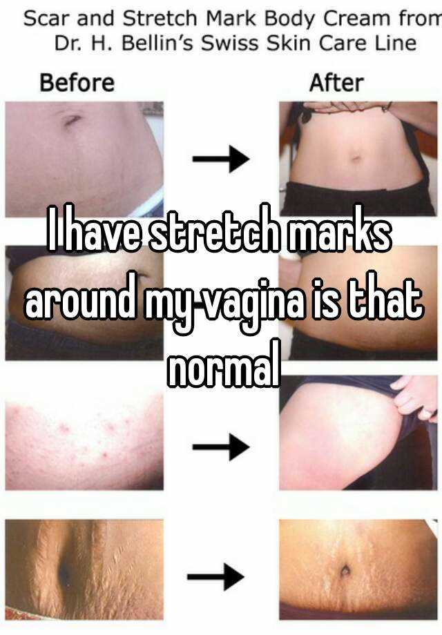 How much can vagina stretch