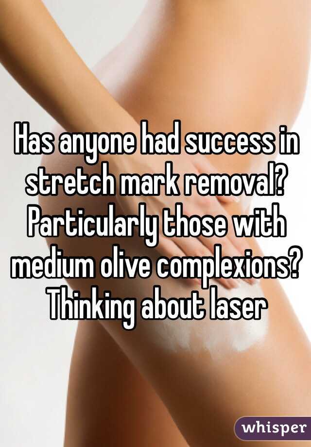 Has anyone had success in stretch mark removal? Particularly those with medium olive complexions? Thinking about laser