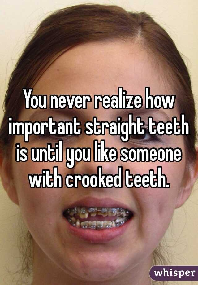 You never realize how important straight teeth is until you like someone with crooked teeth.