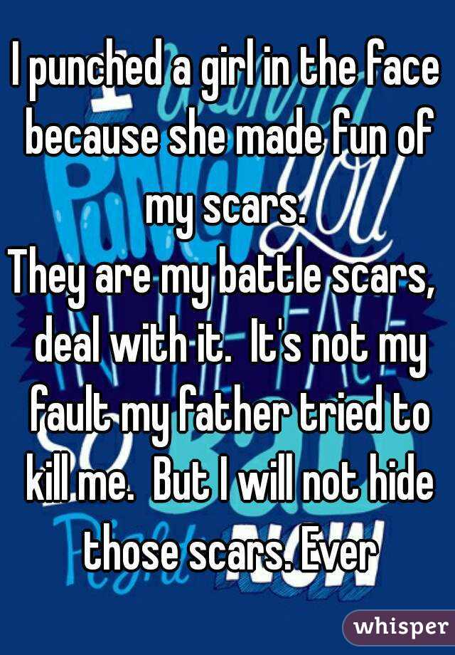 I punched a girl in the face because she made fun of my scars.  They are my battle scars,  deal with it.  It's not my fault my father tried to kill me.  But I will not hide those scars. Ever