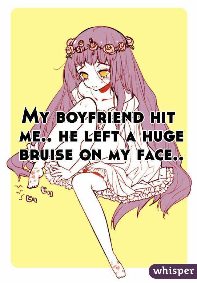 My boyfriend hit me.. he left a huge bruise on my face..