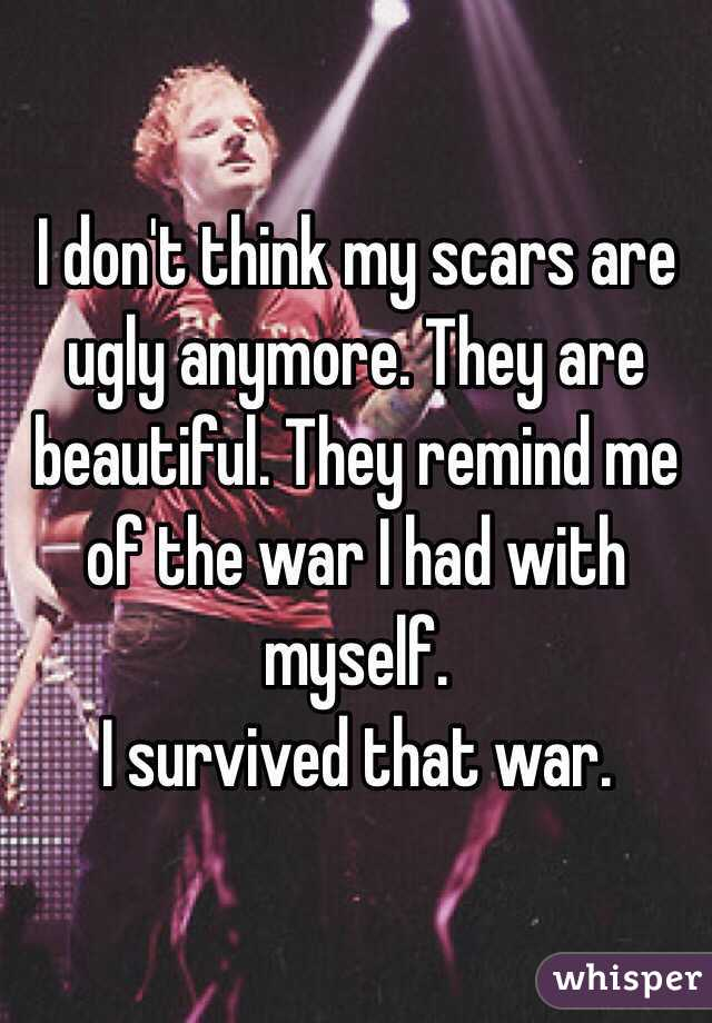 I don't think my scars are ugly anymore. They are beautiful. They remind me of the war I had with myself. I survived that war.