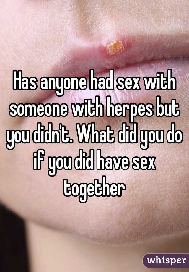 I had sex with someone with herpes