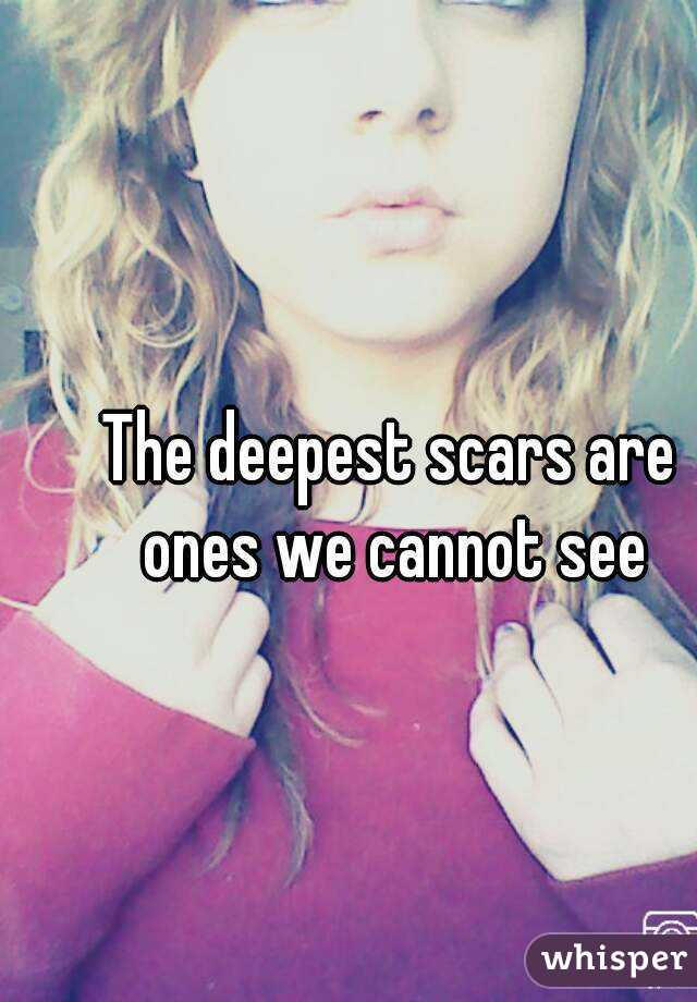 The deepest scars are ones we cannot see