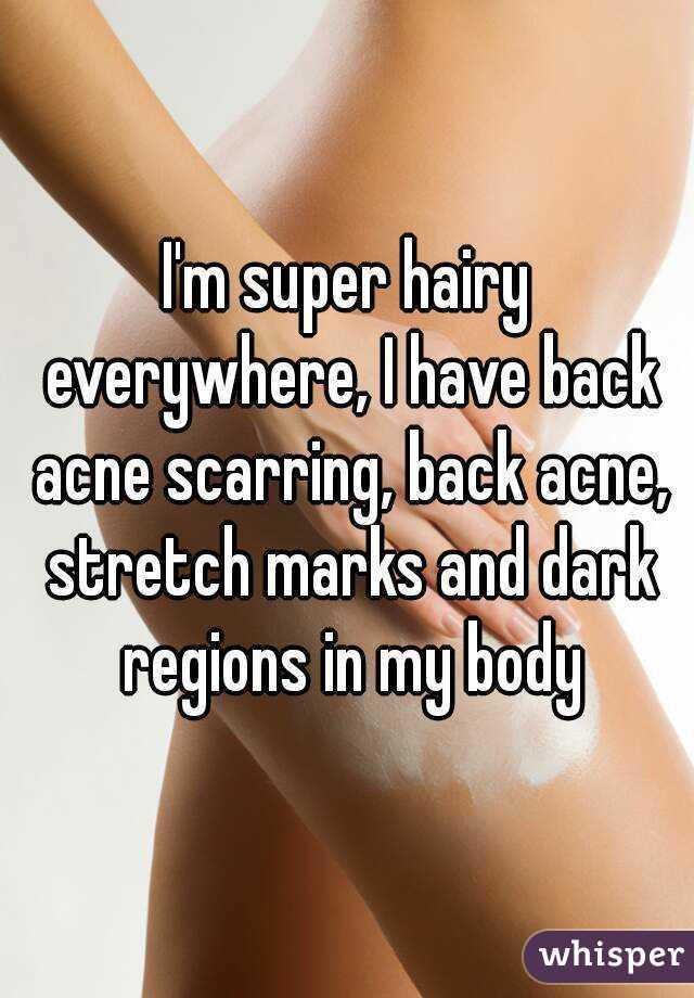 adult-body-acne