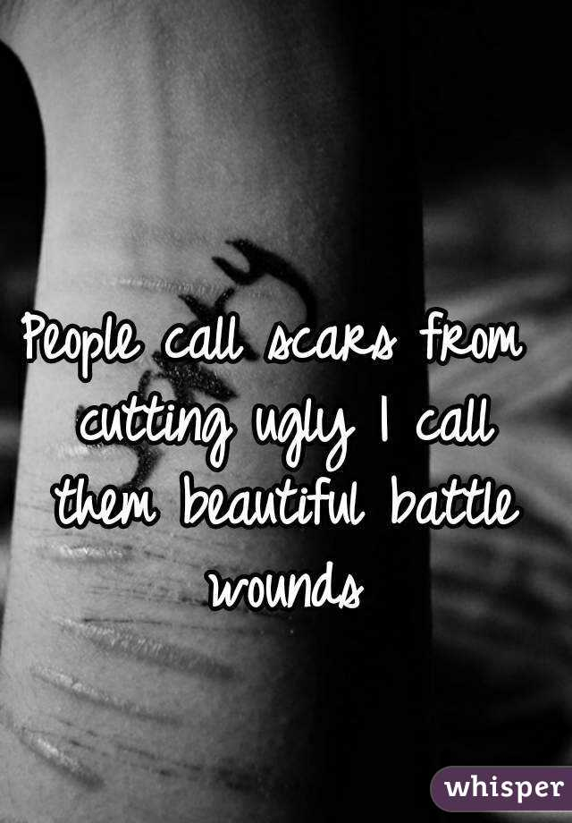 People call scars from cutting ugly I call them beautiful battle wounds