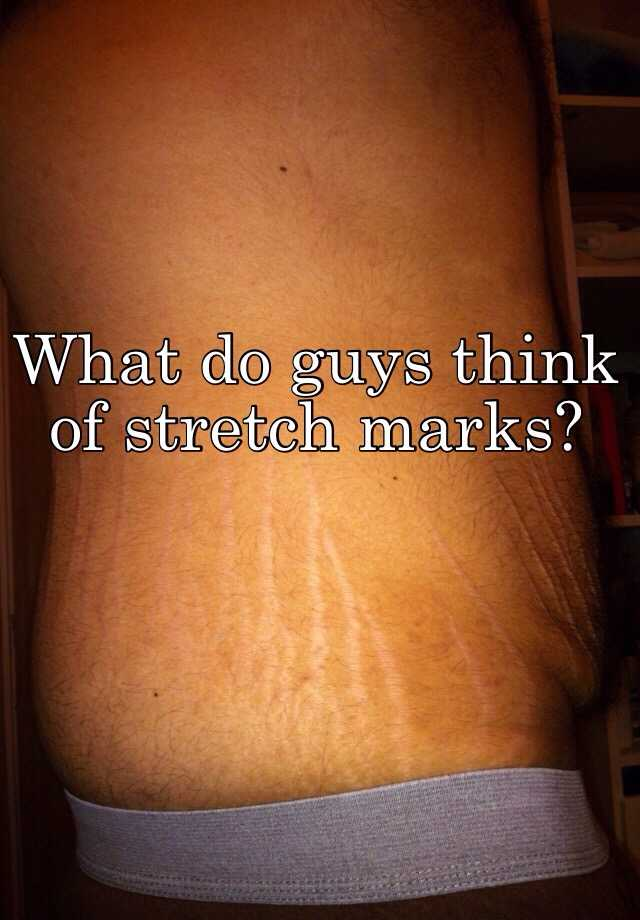 What do guys think about stretch marks
