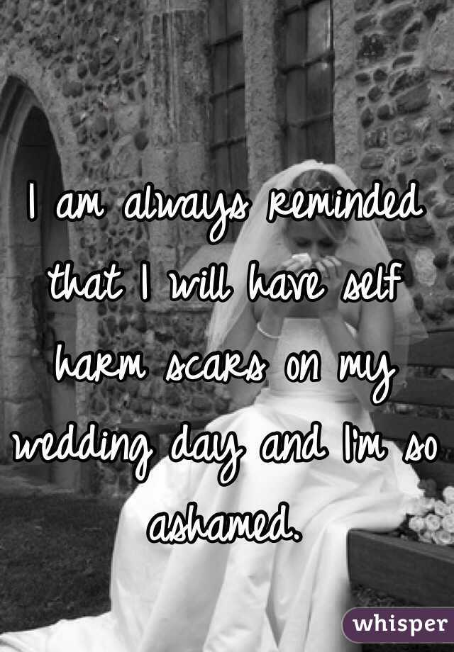 I am always reminded that I will have self harm scars on my wedding day and I'm so ashamed.