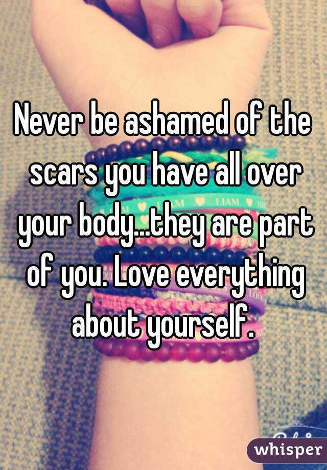 Never be ashamed of the scars you have all over your body...they are part of you. Love everything about yourself.