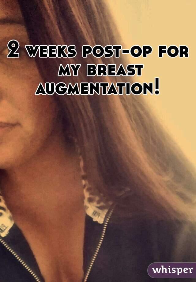 Breast augmentation 2 weeks post op